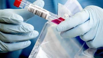 Koronawirus nadal groźny. Jedno z województw ma więcej nowych zakażeń niż Śląsk