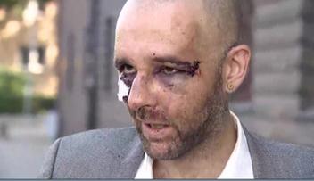 Dotkliwe pobicie dziennikarza. Jest wyrok